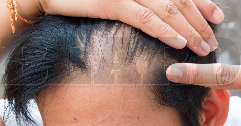 Alopecia-Tudo-que-você-precisa-saber-está-na-Beard